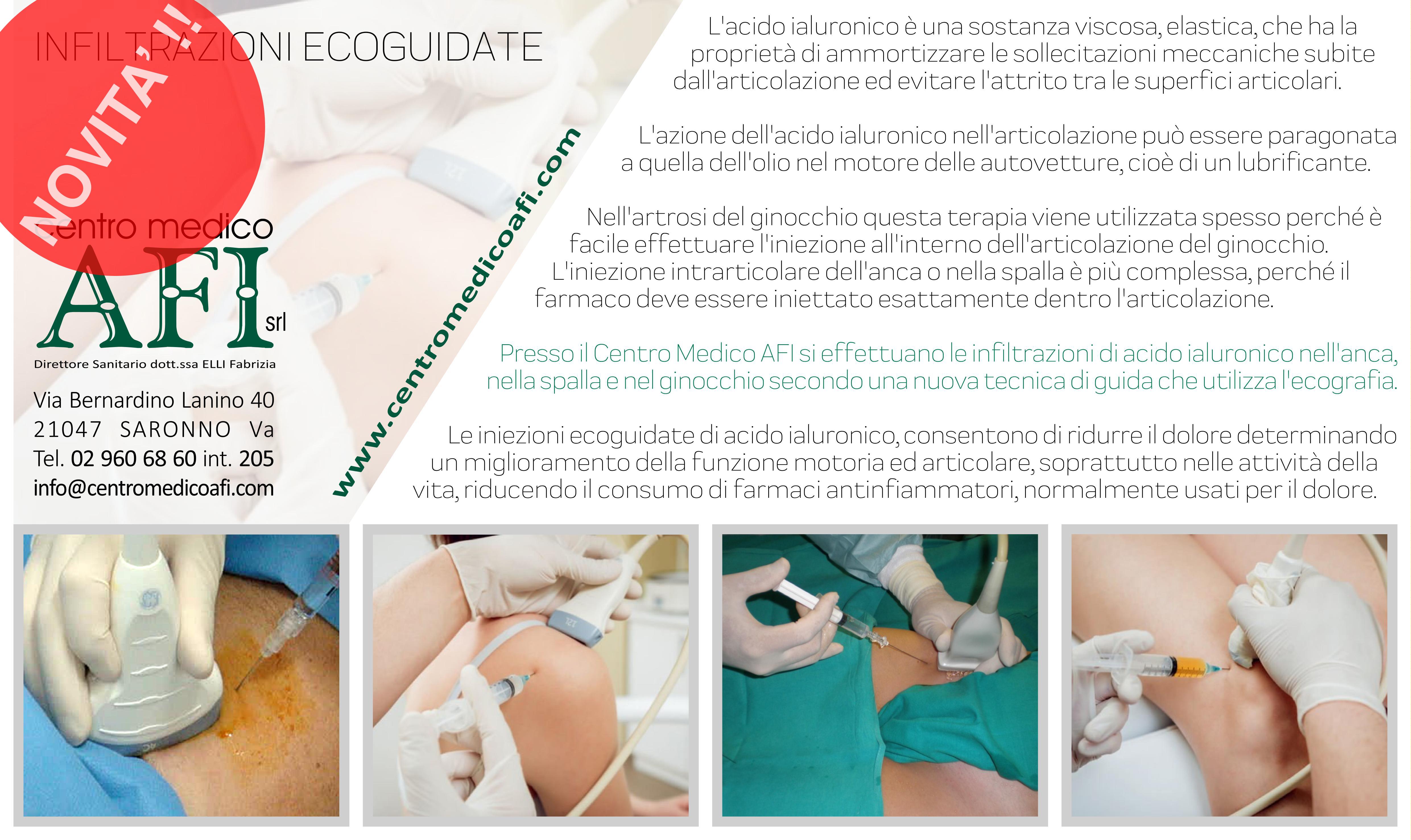 INFILTRAZIONI ECOGUIDATE_Centro_Medico_AFI_Saronno